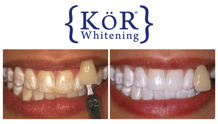 Teeth Whitening Kor Georgetown Sc Dentist Pawleys