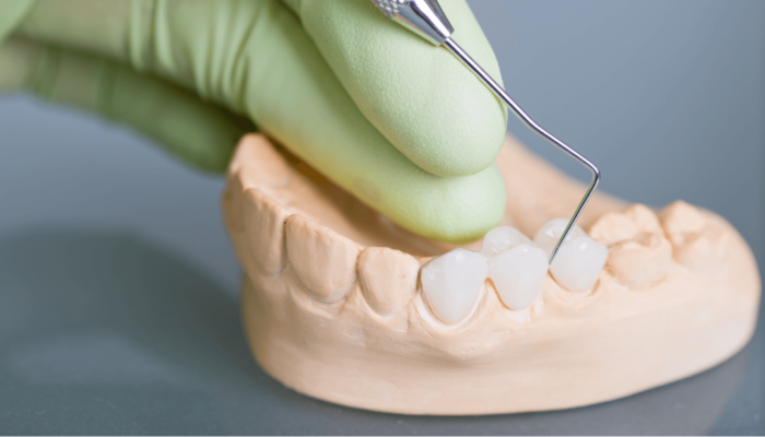 dental bridges georgetown sc