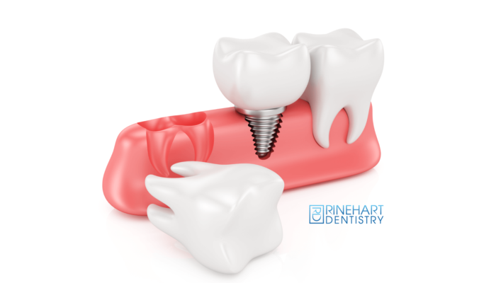 Dental implants Georgetown SC dentists