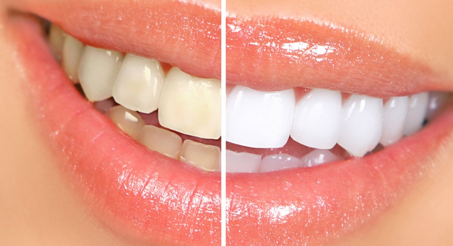 kor whitening system whiter teeth