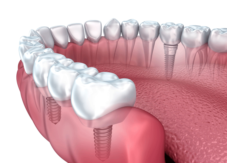 dental_implants_pawleys_Island_south_carolina